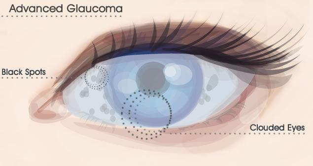 glaucoma surgery miami | eye conditions | glaucoma miami, Skeleton